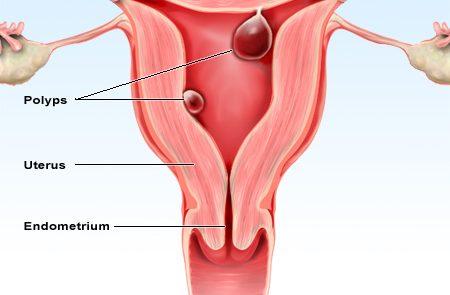 Pólipo endometrial e Fertilização in vitro